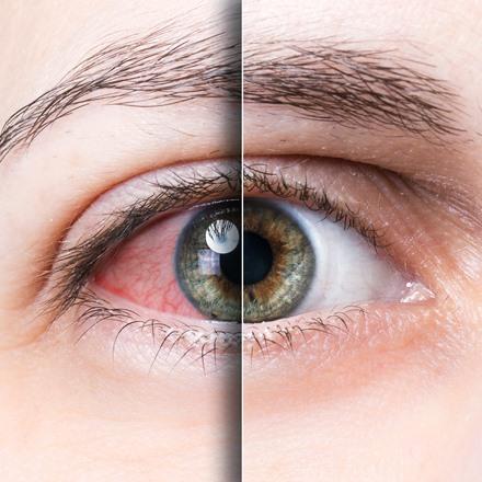 โรคเบาหวานขึ้นตา